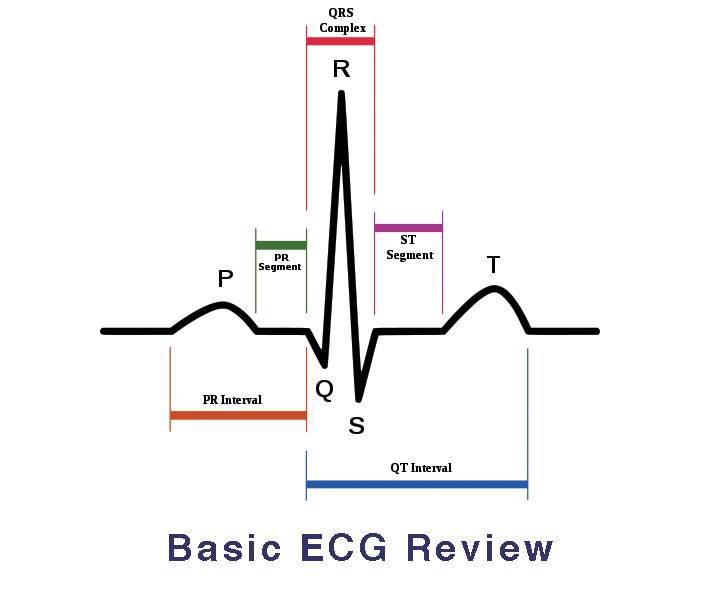Diagram Basic Ekg Interpretation